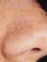 puntos-negros-nariz