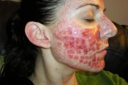 borrar cicatrices acne