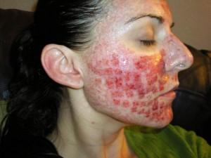 Como eliminar las cicatrices del acne de manera natural