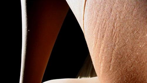 tratamientos laser para las estrias