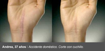 cicatricure antes despues corte